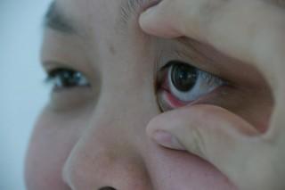 Tổn thương mắt do đái tháo đường