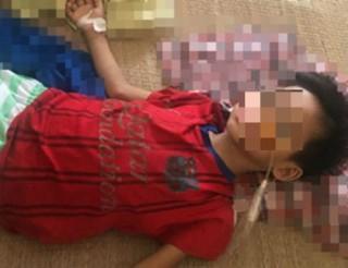 Uống nhầm axit, bé trai 7 tuổi phải cắt bỏ 2/3 dạ dày