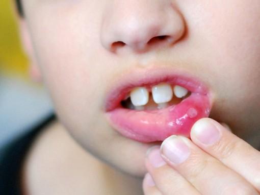 Lở miệng - bệnh không thể coi thường dù là người lớn hay trẻ nhỏ