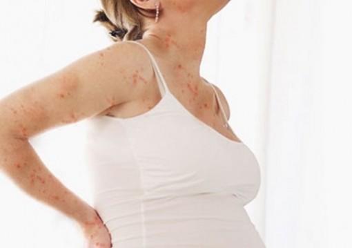 Phụ nữ mang thai bị thủy đậu con sinh ra có thể bị tật đầu nhỏ, tâm thần