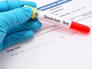 Chứng thừa sắt di truyền có nguy hiểm?