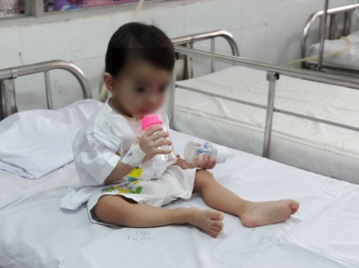 Bé 1 tuổi bị thìa đâm vào họng