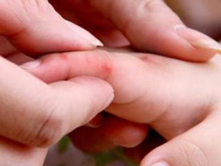 Dịch bệnh tay chân miệng đang gia tăng tại miền Nam