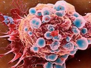 6 bệnh ung thư hay gặp ở phụ nữ