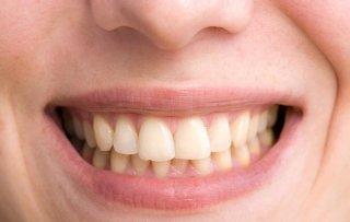 6 sai lầm khiến răng vàng ố mà bạn không ngờ tới