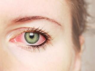 4 dấu hiệu bất thường ở mắt báo động sức khỏe bất ổn