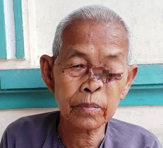Bà lão với vết lở ở mắt không tiền chữa trị