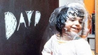 Dùng virút HIV chữa bệnh 'em bé bong bóng'