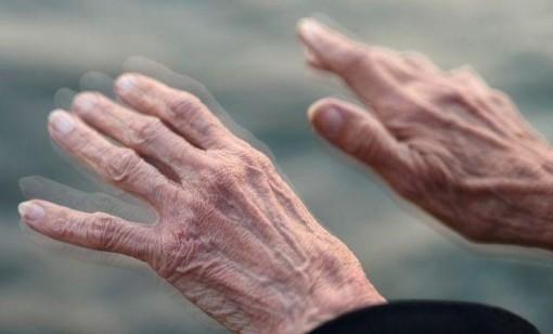 Phẫu thuật kích thích não sâu - hy vọng mới cho bệnh nhân Parkinson