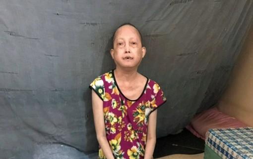 Thương một phụ nữ mắc bệnh xơ cứng bì