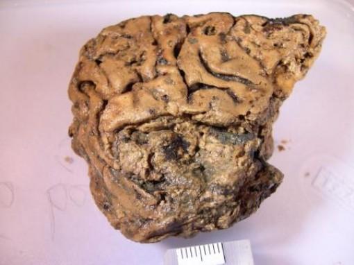 Phát hiện bộ não còn nguyên sau 2.600 năm