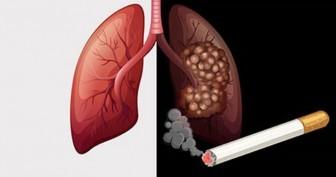 90% bệnh nhân ung thư phổi do hút thuốc lá