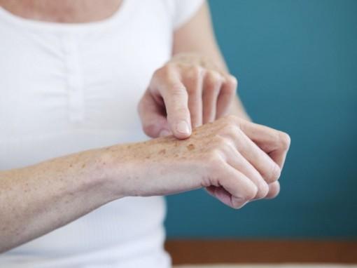 Bí quyết chữa nám ở mu bàn tay cực đơn giản, bạn có biết?