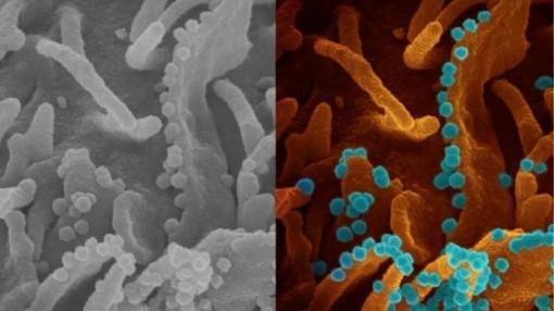 Hình ảnh tế bào virus SARS-CoV-2 sắp chết giải phóng các hạt virus mới