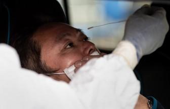 Nhật Bản sẽ thử nghiệm sử dụng tế bào gốc để chữa trị COVID-19