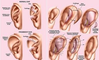 Nâng mũi từ sụn vành tai có lợi ích gì?