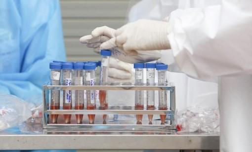 Nhiều bệnh nhân tử vong không phản ánh độc lực của SARS-CoV-2