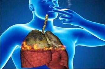 Hút thuốc và bệnh hô hấp