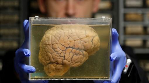 5 thói quen để có bộ não khỏe mạnh hơn