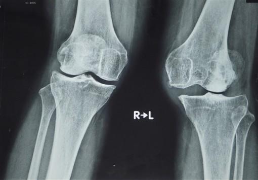 Lần đầu tại Việt Nam phẫu thuật thay khớp gối dạng bản lề bằng titanium
